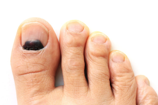 Quick Fixes for Toenail and Fingernail Pain