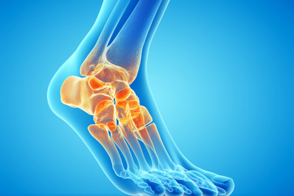 Faster Recovery with Ankle Scoping