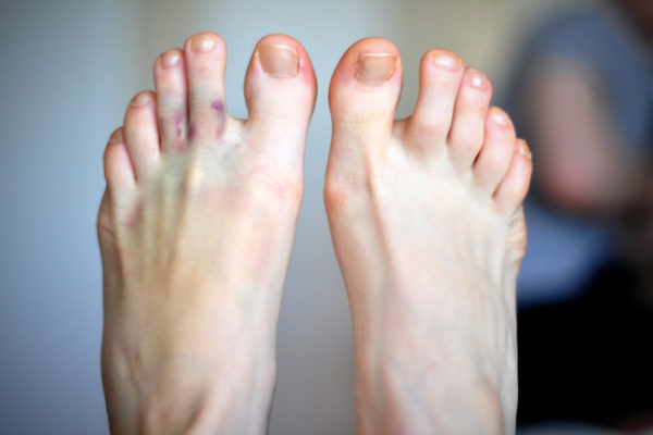 What Are COVID Toes & How Are They Treated?