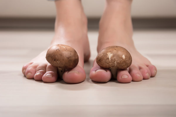 The Best Way to Get Rid of Athlete's Foot
