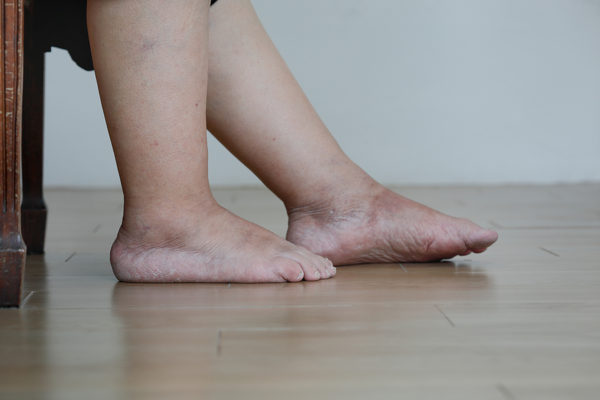 The Truth About Leg Swelling