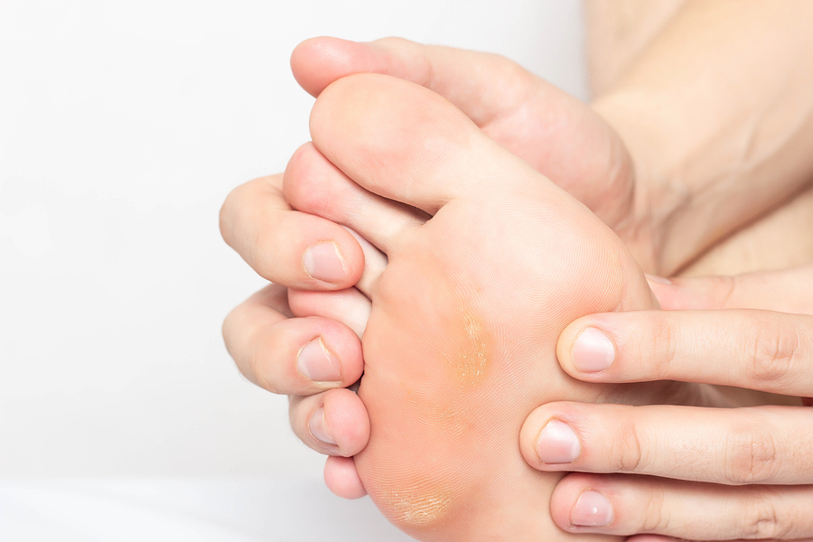 Why Calluses Are Bad News for Diabetics