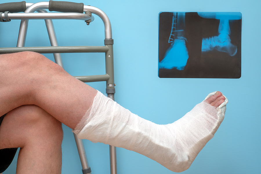 Planning Your Foot & Ankle Surgery