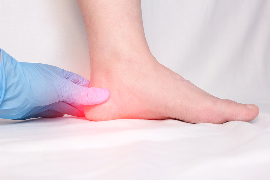 Can I Wait to See My Doctor for Plantar Fasciitis?